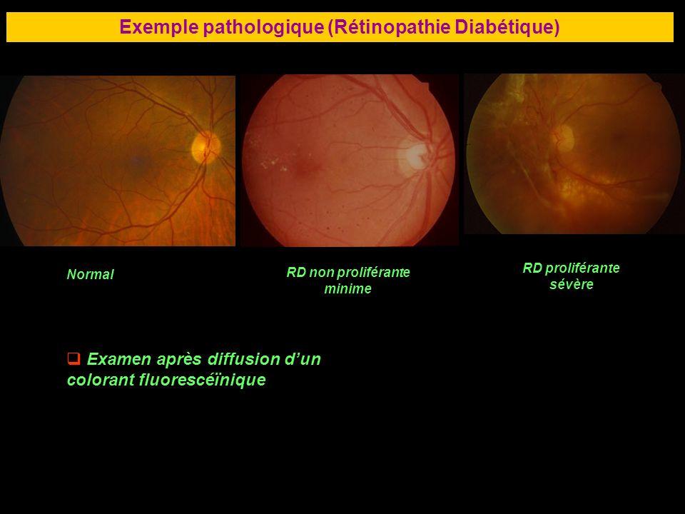 71 Exemple pathologique (Rétinopathie Diabétique) Normal RD non proliférante minime RD proliférante sévère Examen après diffusion dun colorant fluores