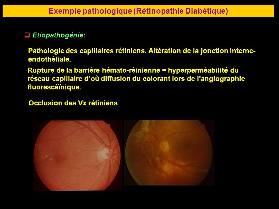 72 Exemple pathologique (Rétinopathie Diabétique) Etiopathogénie: Pathologie des capillaires rétiniens. Altération de la jonction interne- endothélial