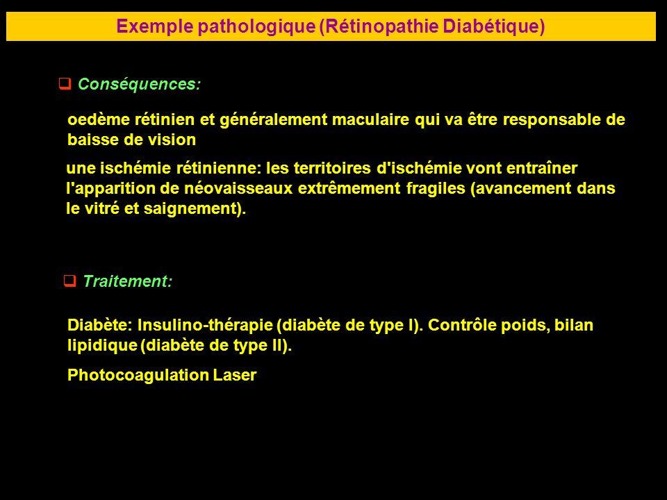 73 Exemple pathologique (Rétinopathie Diabétique) Conséquences: oedème rétinien et généralement maculaire qui va être responsable de baisse de vision