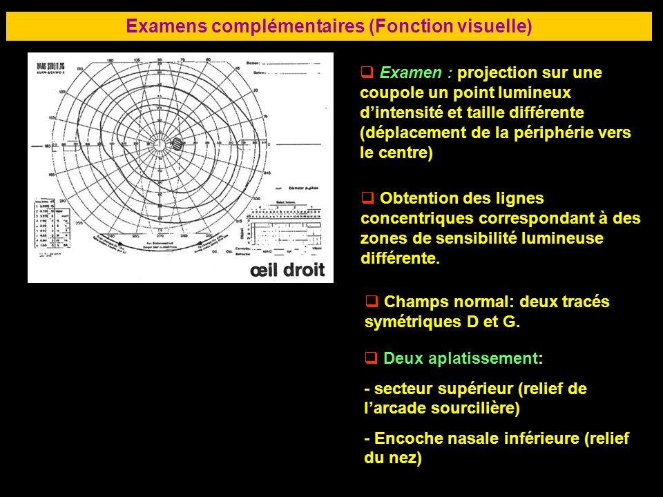 76 Examen : projection sur une coupole un point lumineux dintensité et taille différente (déplacement de la périphérie vers le centre) Obtention des l