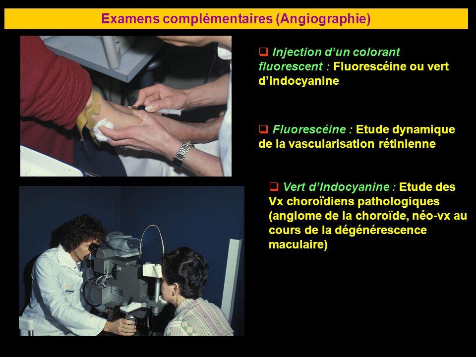 78 Examens complémentaires (Angiographie) Injection dun colorant fluorescent : Fluorescéine ou vert dindocyanine Fluorescéine : Etude dynamique de la