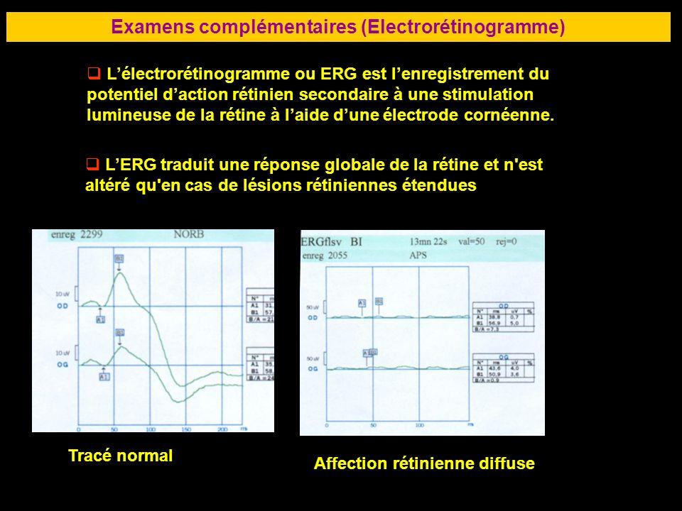 81 Examens complémentaires (Electrorétinogramme) Lélectrorétinogramme ou ERG est lenregistrement du potentiel daction rétinien secondaire à une stimul