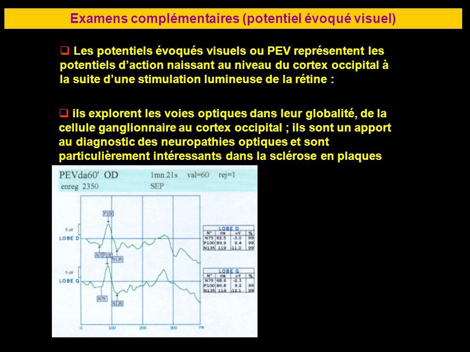 82 Examens complémentaires (potentiel évoqué visuel) Les potentiels évoqués visuels ou PEV représentent les potentiels daction naissant au niveau du c