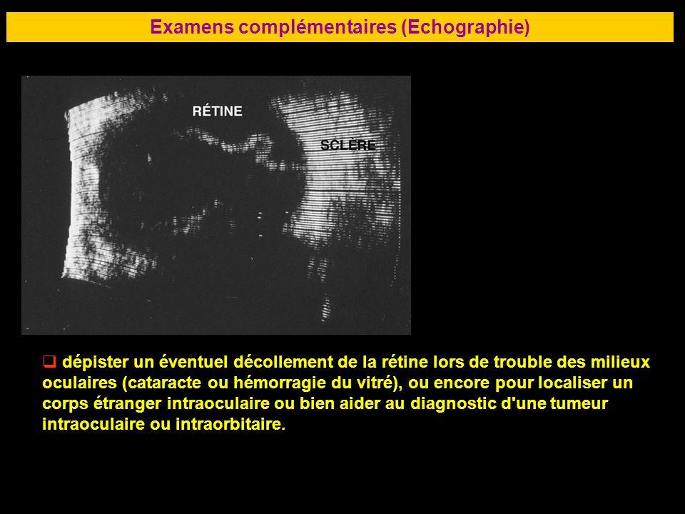 83 Examens complémentaires (Echographie) dépister un éventuel décollement de la rétine lors de trouble des milieux oculaires (cataracte ou hémorragie