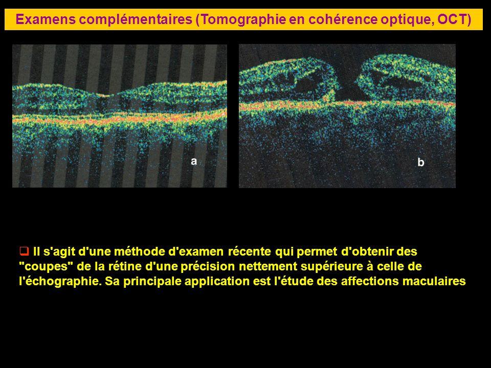 84 Examens complémentaires (Tomographie en cohérence optique, OCT) Il s'agit d'une méthode d'examen récente qui permet d'obtenir des