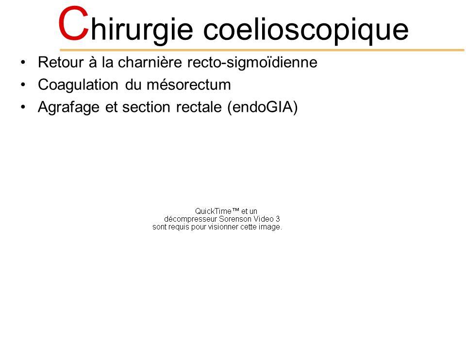 C hirurgie coelioscopique Retour à la charnière recto-sigmoïdienne Coagulation du mésorectum Agrafage et section rectale (endoGIA)