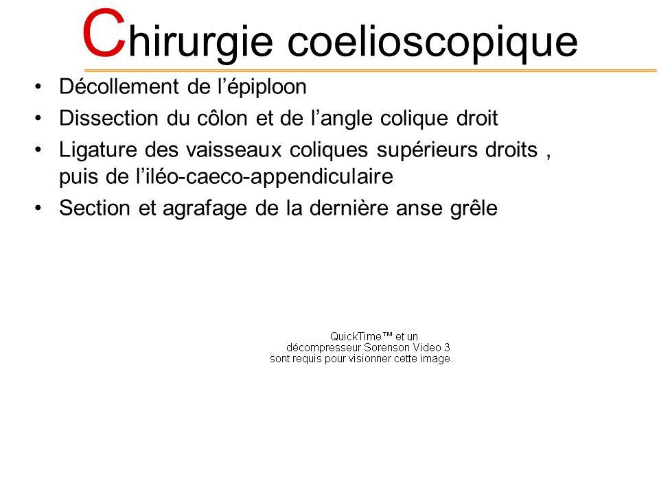 C hirurgie coelioscopique Décollement de lépiploon Dissection du côlon et de langle colique droit Ligature des vaisseaux coliques supérieurs droits, p
