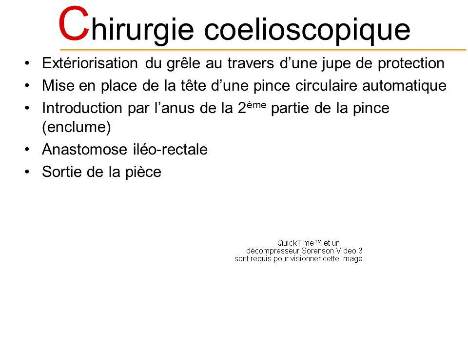 C hirurgie coelioscopique Extériorisation du grêle au travers dune jupe de protection Mise en place de la tête dune pince circulaire automatique Intro