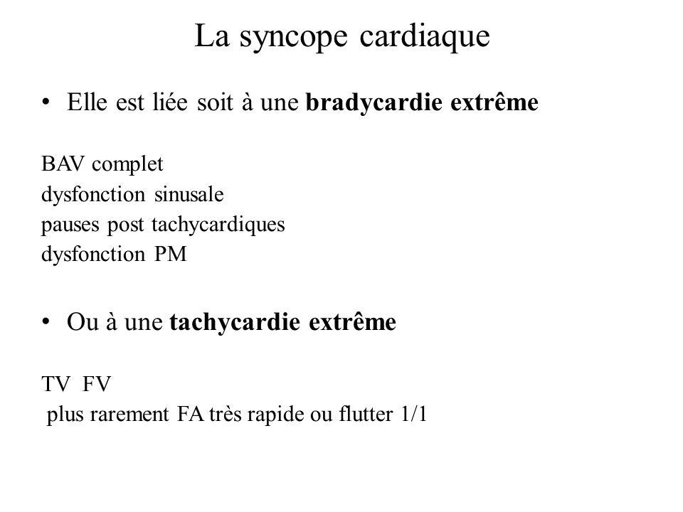 La syncope cardiaque Elle est liée soit à une bradycardie extrême BAV complet dysfonction sinusale pauses post tachycardiques dysfonction PM Ou à une