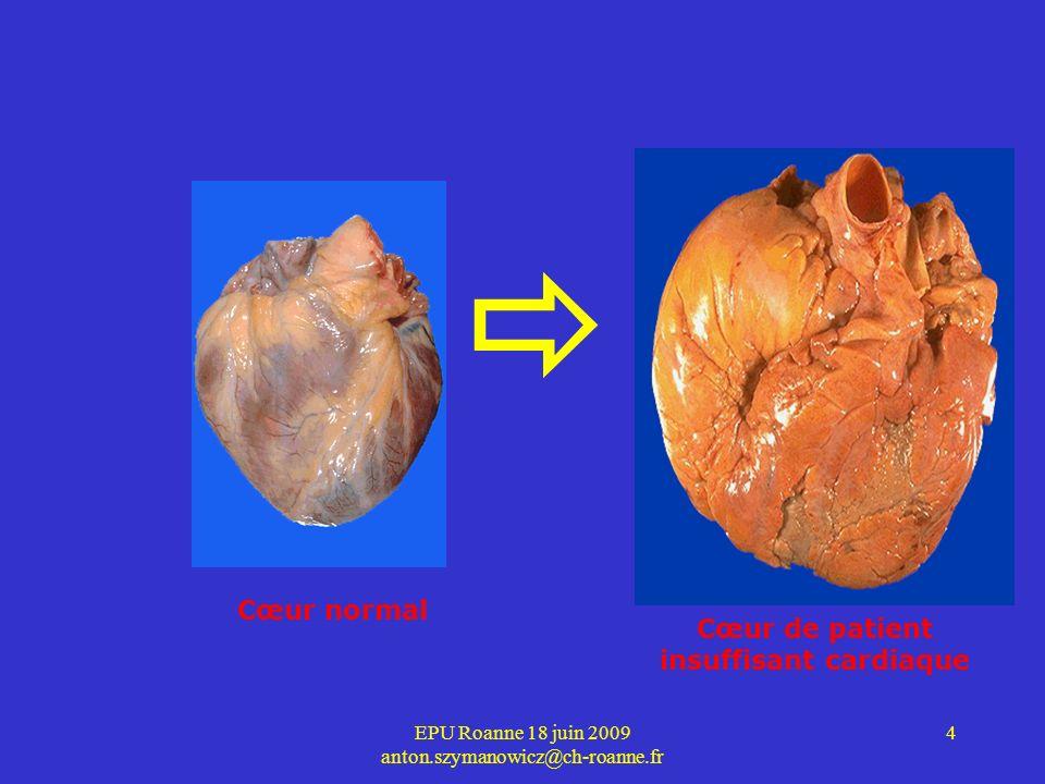 EPU Roanne 18 juin 2009 anton.szymanowicz@ch-roanne.fr 5 8 Classification des symptômes Définis par la New York Heart Association (NYHA) 4 classes: –I : asymptomatique, gêne lors d efforts exceptionnels –II : gêne modérée pour des efforts importants –III: gêne ressentie lors d efforts modérés –IV : gêne ressentie lors du moindre effort ou au repos.