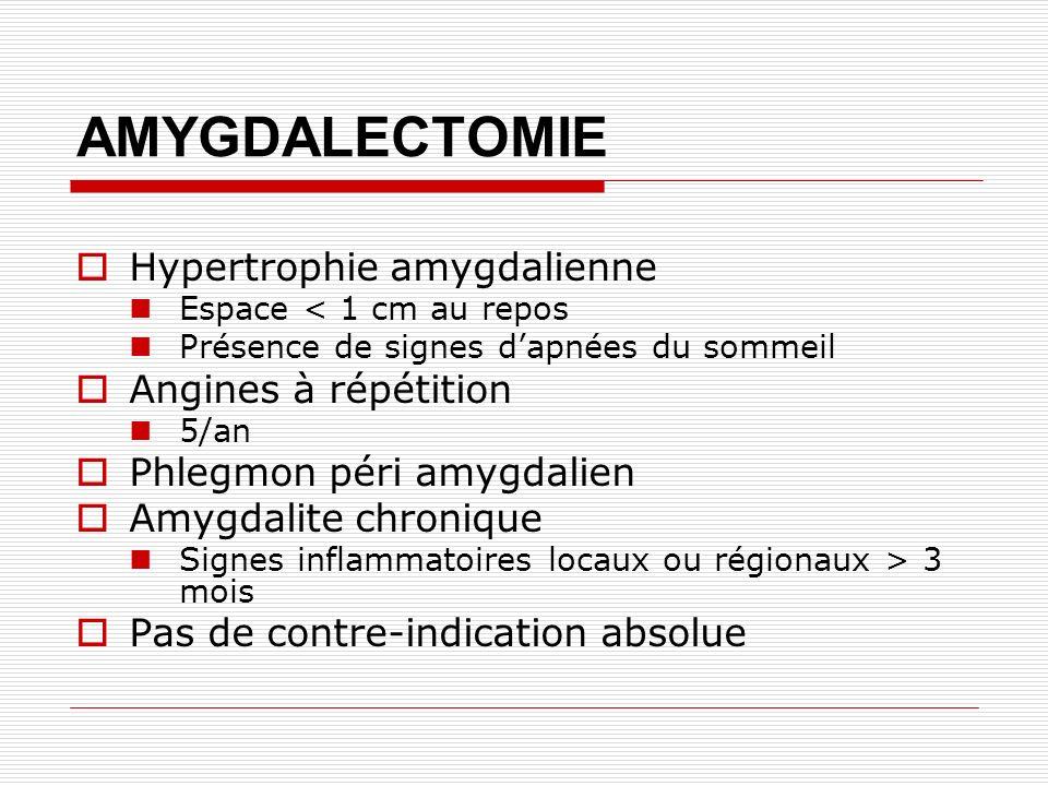 AMYGDALECTOMIE Hypertrophie amygdalienne Espace < 1 cm au repos Présence de signes dapnées du sommeil Angines à répétition 5/an Phlegmon péri amygdalien Amygdalite chronique Signes inflammatoires locaux ou régionaux > 3 mois Pas de contre-indication absolue