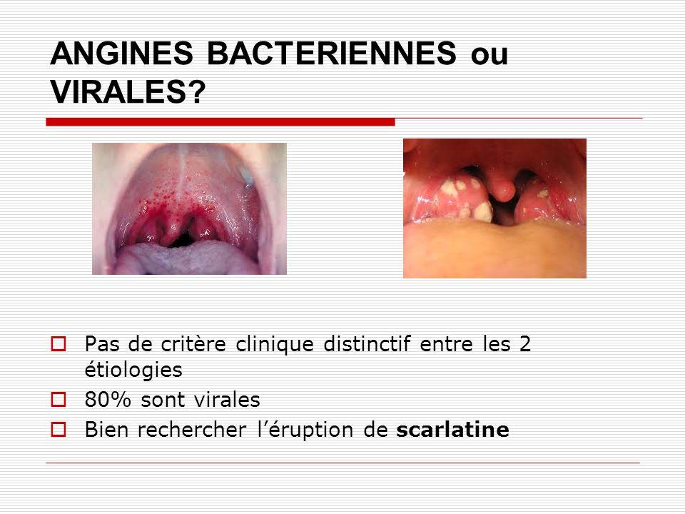 ANGINES BACTERIENNES ou VIRALES? Pas de critère clinique distinctif entre les 2 étiologies 80% sont virales Bien rechercher léruption de scarlatine