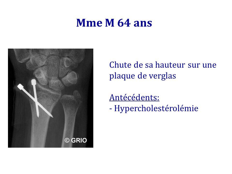 Mme M 64 ans Chute de sa hauteur sur une plaque de verglas Antécédents: - Hypercholestérolémie