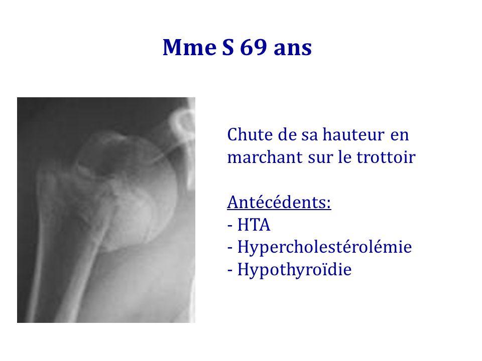 Mme S 69 ans Chute de sa hauteur en marchant sur le trottoir Antécédents: - HTA - Hypercholestérolémie - Hypothyroïdie
