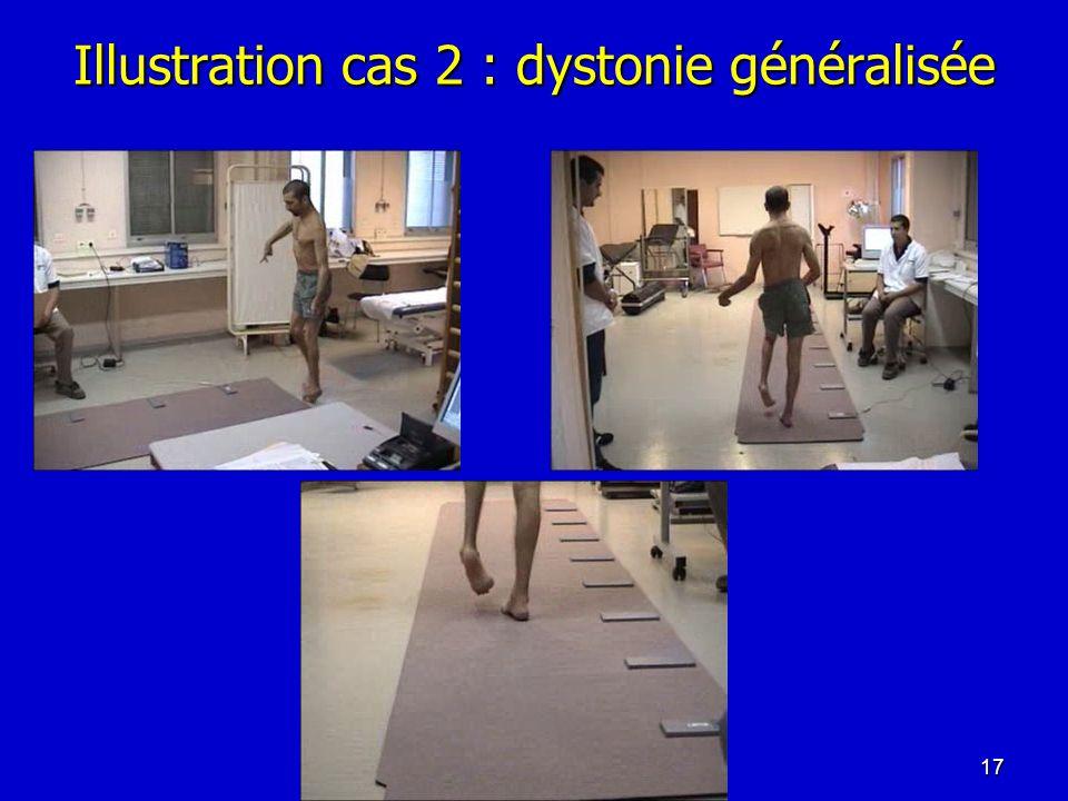 Illustration cas 2 : dystonie généralisée 17