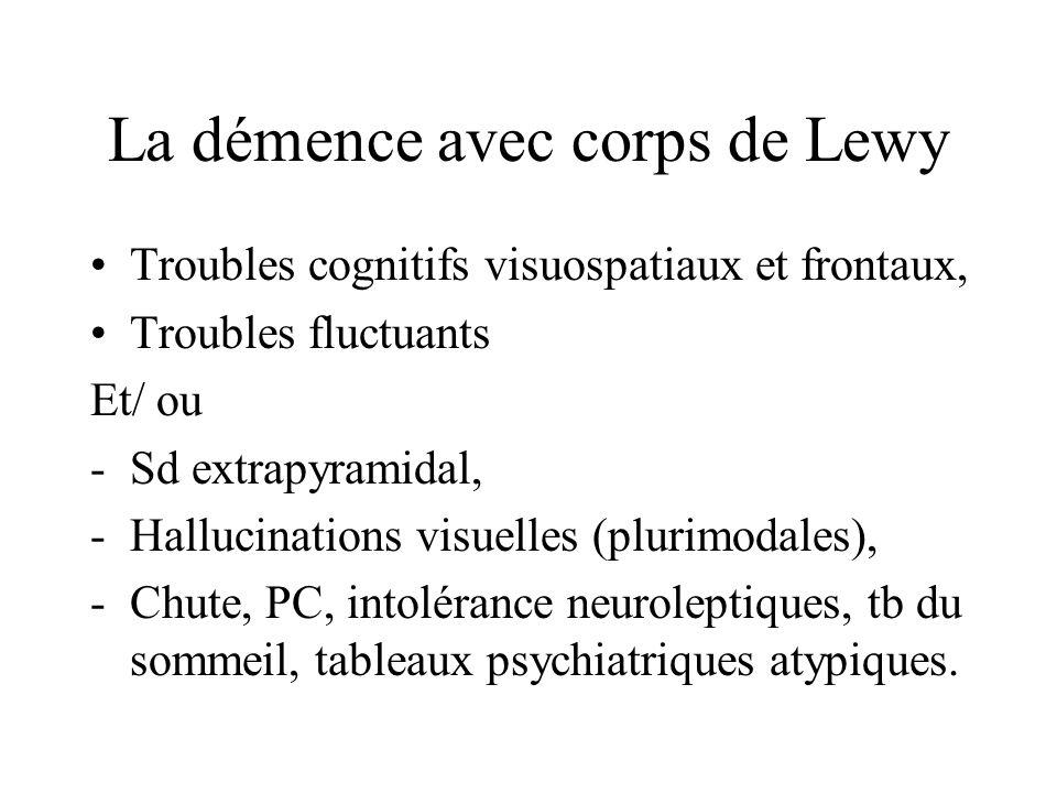 La démence avec corps de Lewy Troubles cognitifs visuospatiaux et frontaux, Troubles fluctuants Et/ ou -Sd extrapyramidal, -Hallucinations visuelles (
