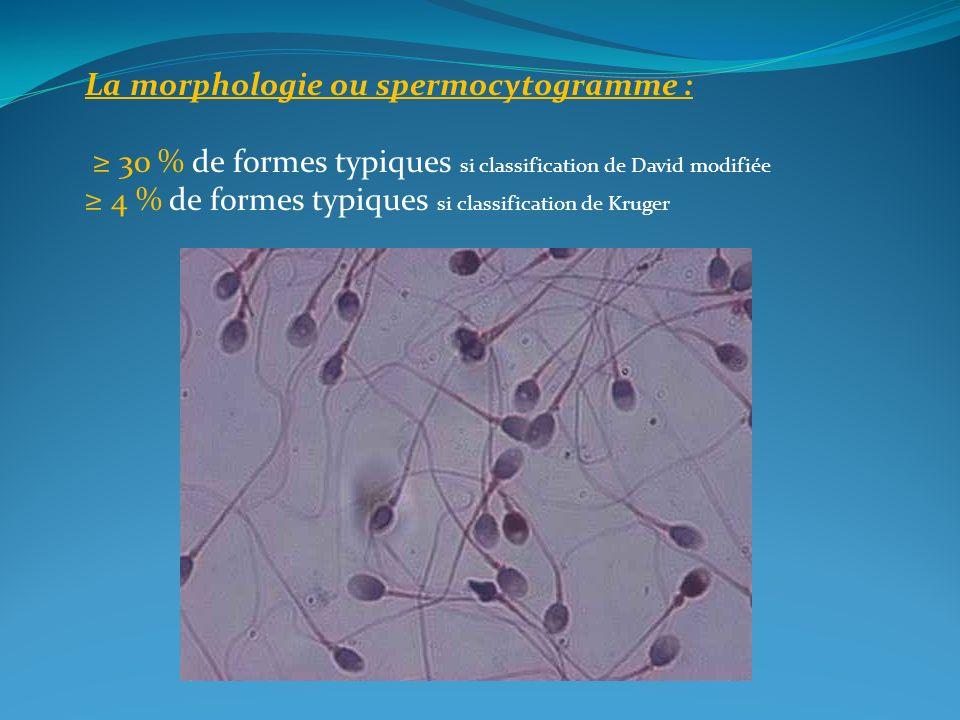 La morphologie ou spermocytogramme : 30 % de formes typiques si classification de David modifiée 4 % de formes typiques si classification de Kruger