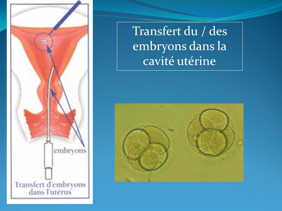 Transfert du / des embryons dans la cavité utérine
