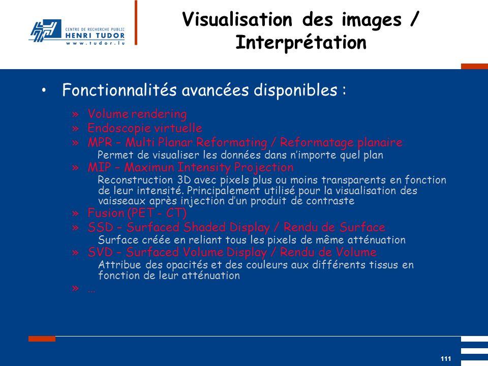 Mai 2004 UP2 GBM Nancy RIS/ PACS 111 Visualisation des images / Interprétation Fonctionnalités avancées disponibles : »Volume rendering »Endoscopie vi