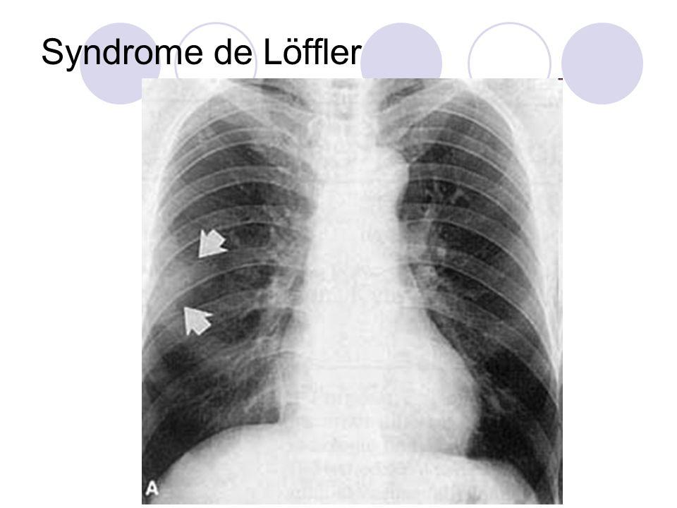Cas Clinique (5) Quels sont les diagnostics envisageables.