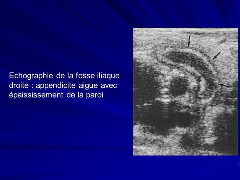 Echographie de la fosse iliaque droite : appendicite aigue avec épaississement de la paroi