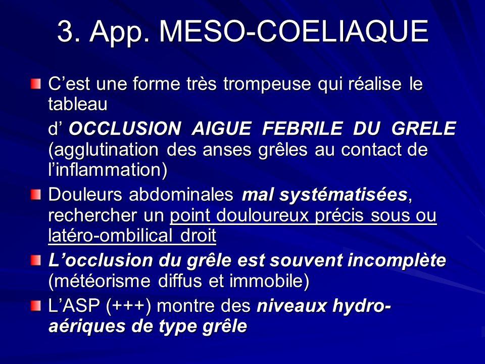 3. App. MESO-COELIAQUE Cest une forme très trompeuse qui réalise le tableau d OCCLUSION AIGUE FEBRILE DU GRELE (agglutination des anses grêles au cont