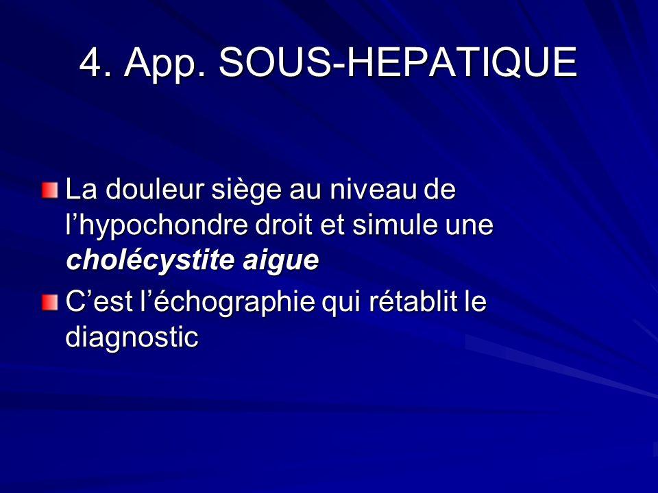 4. App. SOUS-HEPATIQUE La douleur siège au niveau de lhypochondre droit et simule une cholécystite aigue Cest léchographie qui rétablit le diagnostic