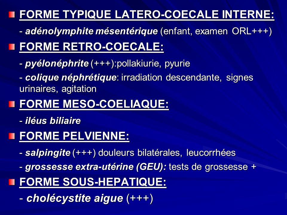 FORME TYPIQUE LATERO-COECALE INTERNE: - adénolymphite mésentérique (enfant, examen ORL+++) FORME RETRO-COECALE: - pyélonéphrite (+++):pollakiurie, pyu