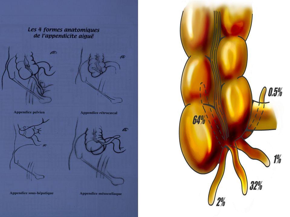 Lappendice iléo-coecal est un cul-de-sac, ce qui favorise la stagnation et linflammation.