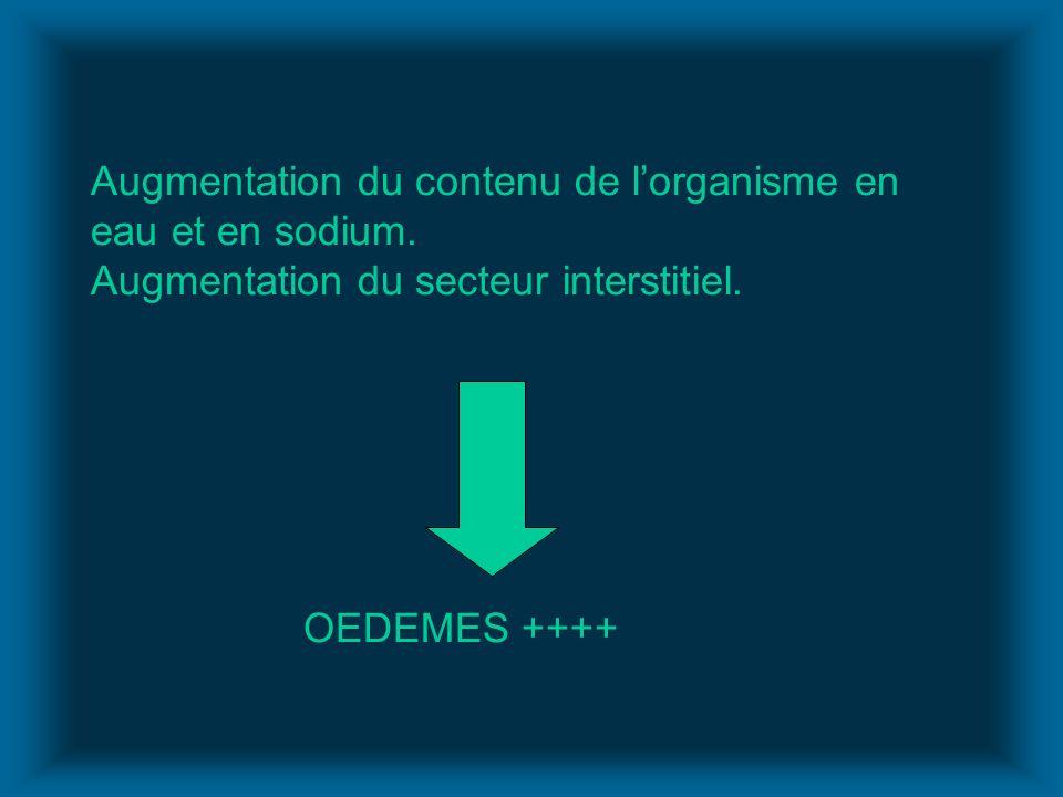 Augmentation du contenu de lorganisme en eau et en sodium. Augmentation du secteur interstitiel. OEDEMES ++++