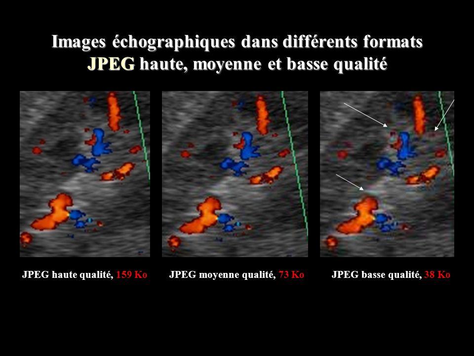 Images échographiques dans différents formats DICOM, JPEG et TIFF Image DICOM, foie en mode 2D conventionnel 1,1 Mo Image JPEG haute qualité, foie en