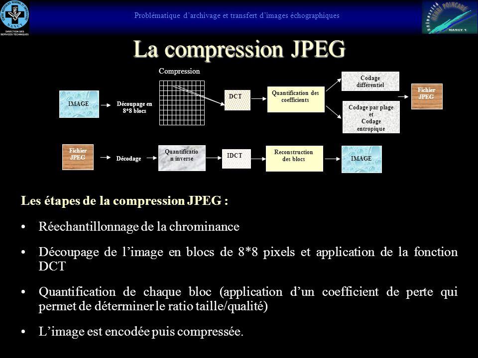 Images échographiques dans différents formats JPEG haute, moyenne et basse qualité JPEG haute qualité, 159 KoJPEG moyenne qualité, 73 KoJPEG basse qua