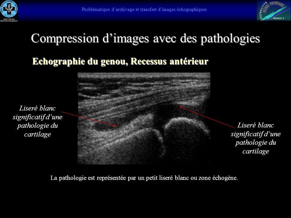 Compression JPEG et JPEG 2000 JPEG 5 KO JPEG 200 5 KO Problématique darchivage et transfert dimages échographiques