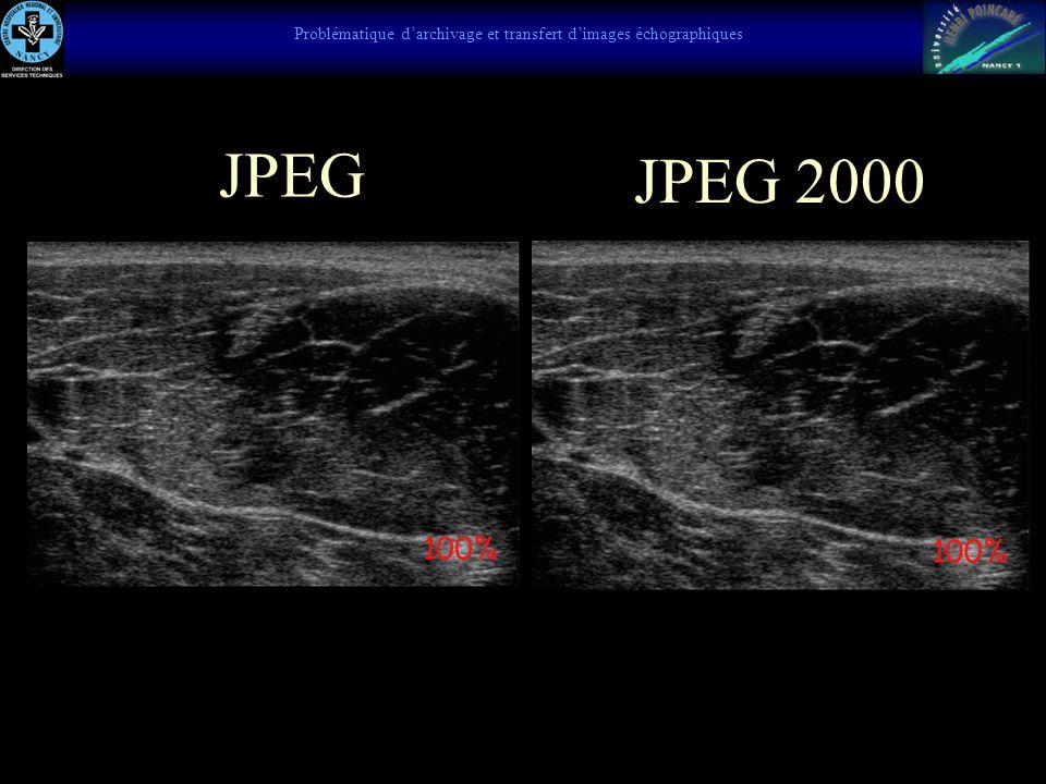 Echographie du muscle, hématome intra-musculaire Claquage, muscle déchiré niveaux de gris caractérisée par une modification de la structure du muscle