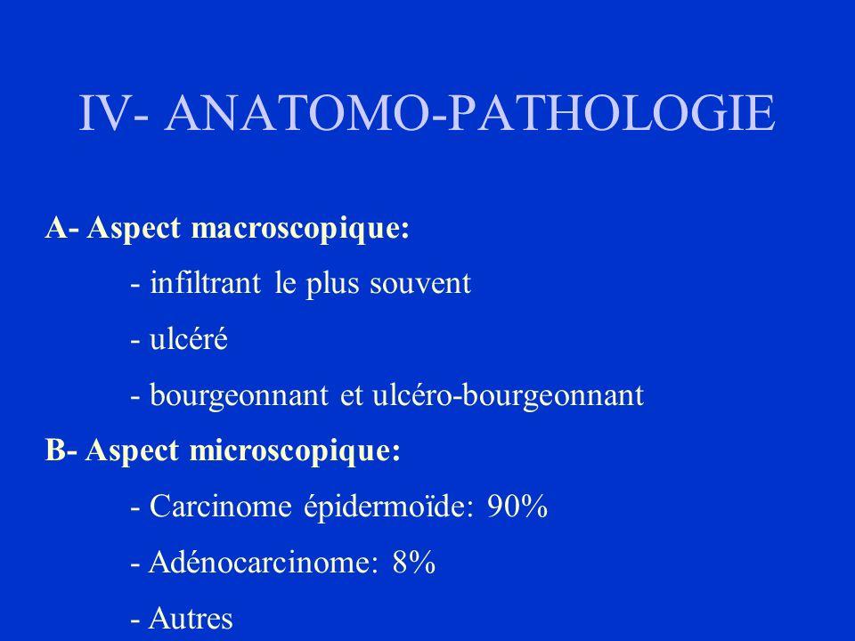 IV- ANATOMO-PATHOLOGIE A- Aspect macroscopique: - infiltrant le plus souvent - ulcéré - bourgeonnant et ulcéro-bourgeonnant B- Aspect microscopique: -