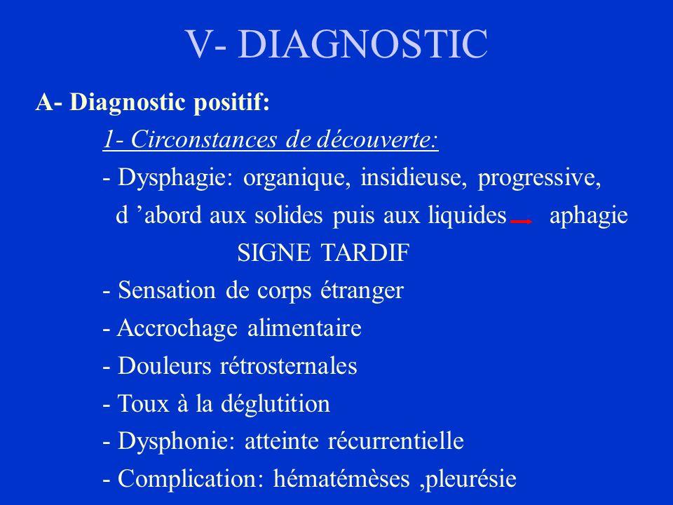V- DIAGNOSTIC A- Diagnostic positif: 1- Circonstances de découverte: - Dysphagie: organique, insidieuse, progressive, d abord aux solides puis aux liq