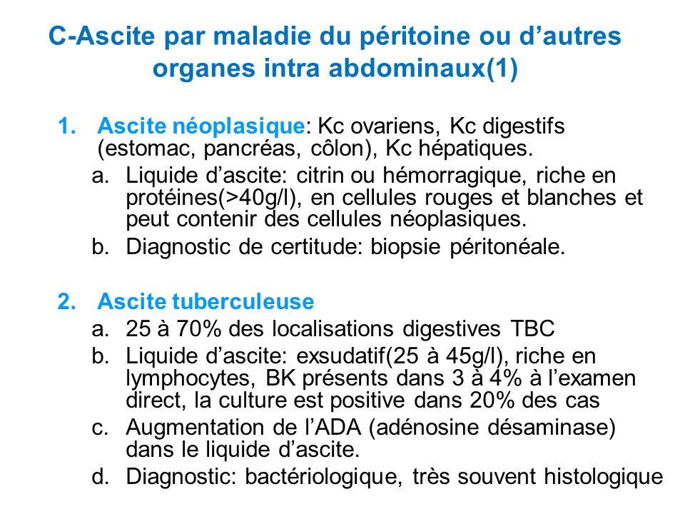 C-Ascite par maladie du péritoine ou dautres organes intra abdominaux(1) 1.Ascite néoplasique: Kc ovariens, Kc digestifs (estomac, pancréas, côlon), Kc hépatiques.