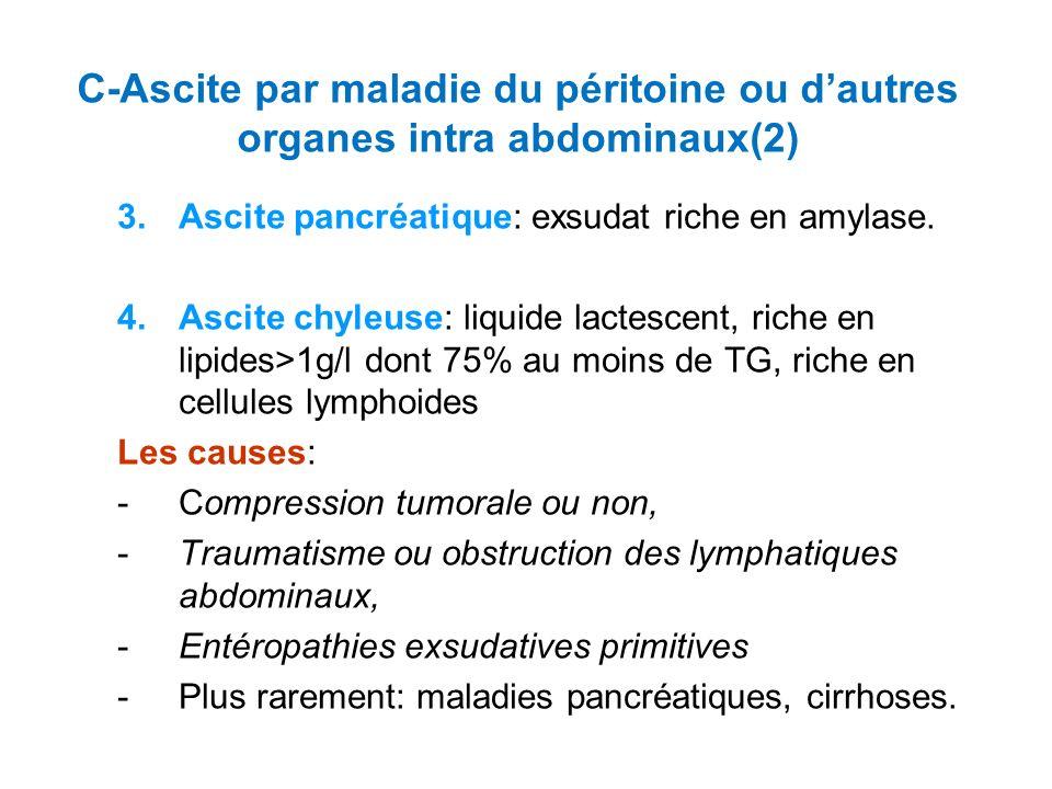 3.Ascite pancréatique: exsudat riche en amylase.