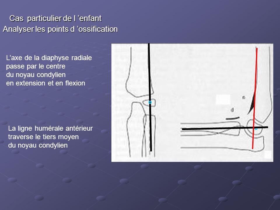 Cas particulier de l enfant Cas particulier de l enfant Analyser les points d ossification Laxe de la diaphyse radiale passe par le centre du noyau condylien en extension et en flexion La ligne humérale antérieur traverse le tiers moyen du noyau condylien