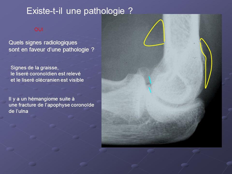 Existe-t-il une pathologie .Quels signes radiologiques sont en faveur dune pathologie .