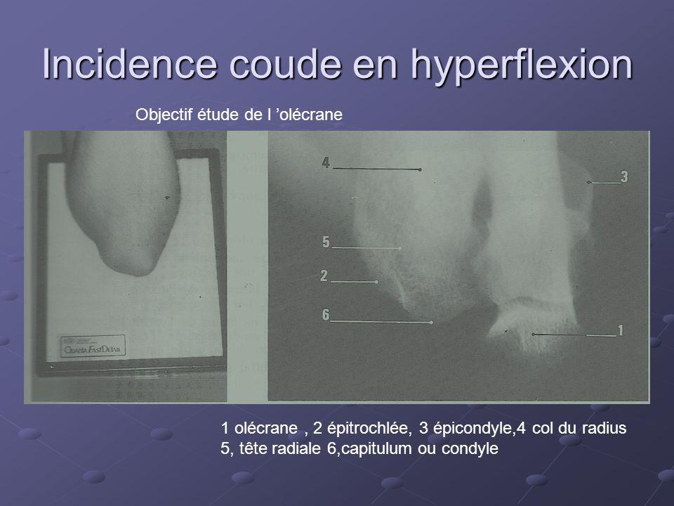 Incidence coude en hyperflexion Objectif étude de l olécrane 1 olécrane, 2 épitrochlée, 3 épicondyle,4 col du radius 5, tête radiale 6,capitulum ou condyle