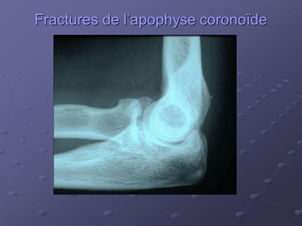 Fractures de lapophyse coronoïde