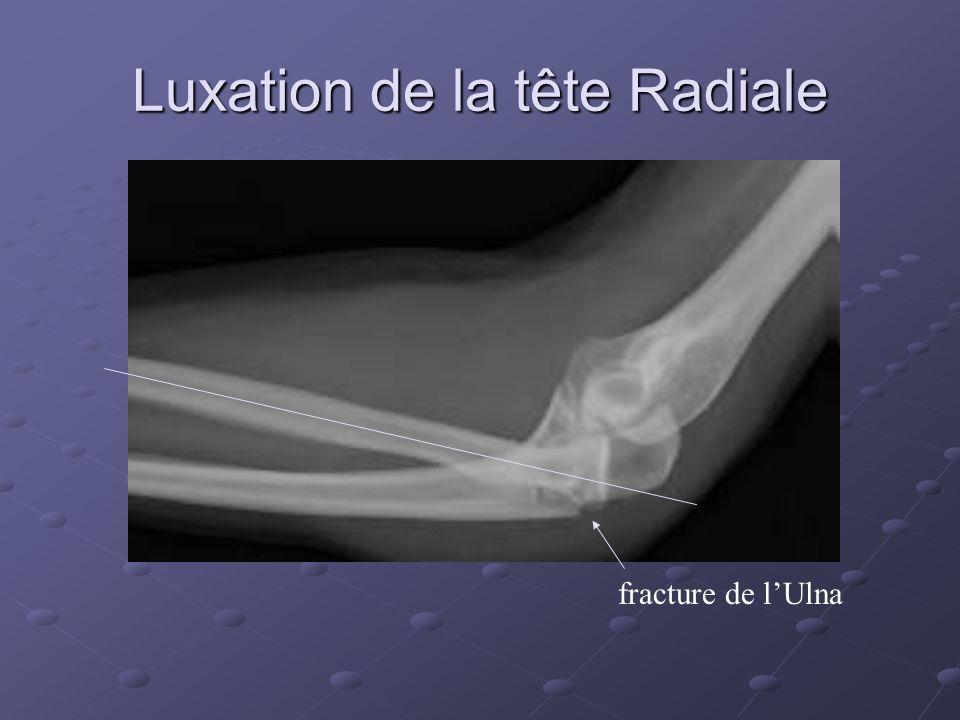 Luxation de la tête Radiale fracture de lUlna