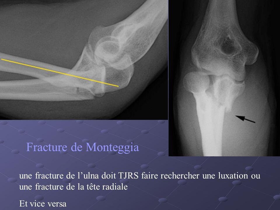Fracture de Monteggia une fracture de lulna doit TJRS faire rechercher une luxation ou une fracture de la tête radiale Et vice versa