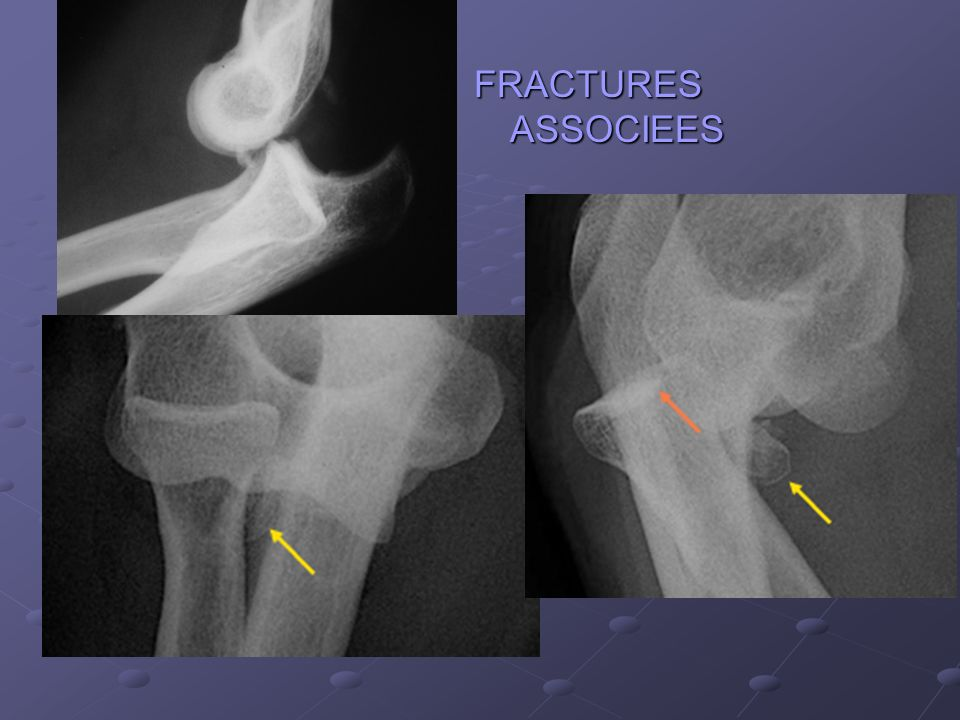 FRACTURES ASSOCIEES