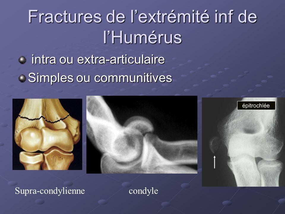 Fractures de lextrémité inf de lHumérus intra ou extra-articulaire intra ou extra-articulaire Simples ou communitives Supra-condyliennecondyle