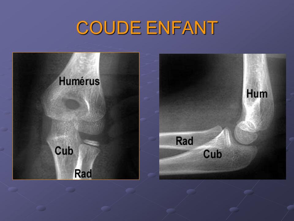 COUDE ENFANT