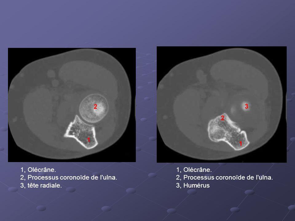 1, Olécrâne.2, Processus coronoïde de l ulna. 3, tête radiale.