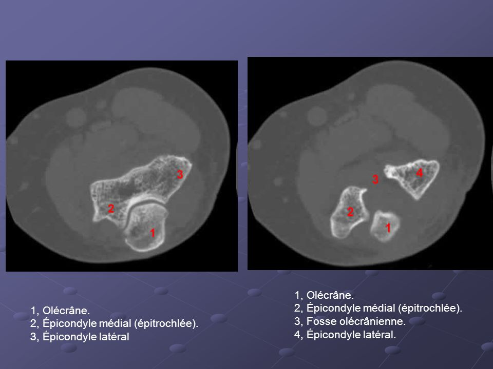 1, Olécrâne.2, Épicondyle médial (épitrochlée). 3, Épicondyle latéral 1, Olécrâne.