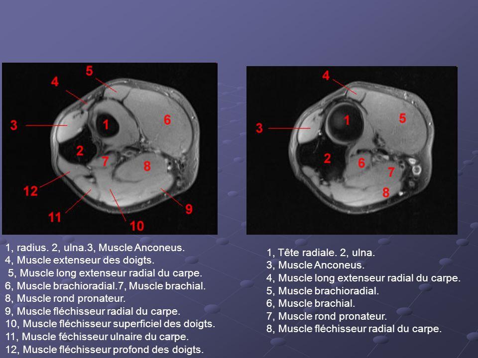 1, radius.2, ulna.3, Muscle Anconeus. 4, Muscle extenseur des doigts.